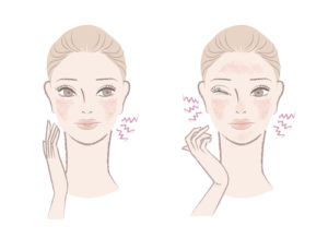 Graphic of woman irritated by sensitive skin