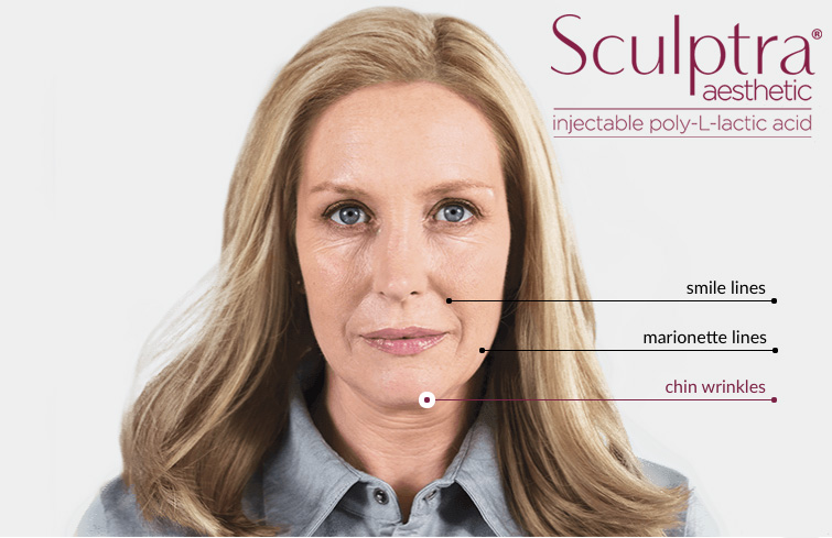 Wheaton sculptra treatment areas