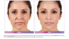 before and after Wheaton Juvederm